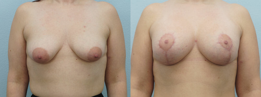 BREAST LIFT WITH IMPLANTS PATIENT 13