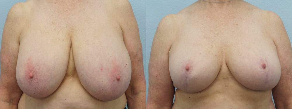 BREAST REDUCTION PATIENT 9