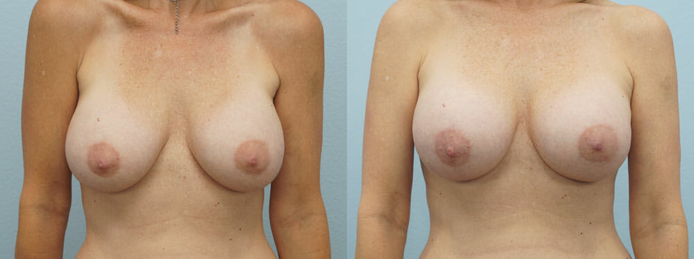 BREAST REVISION PATIENT 8