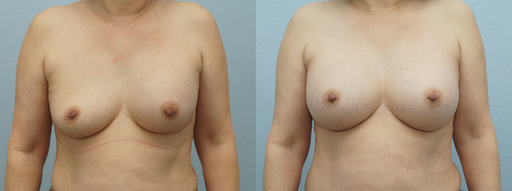 BREAST REVISION PATIENT 9