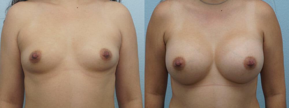BREAST AUGMENTATION PATIENT 55