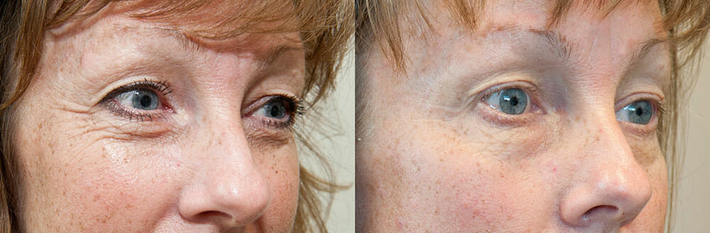 SKIN TIGHTENING + WRINKLE REDUCTION PATIENT 25