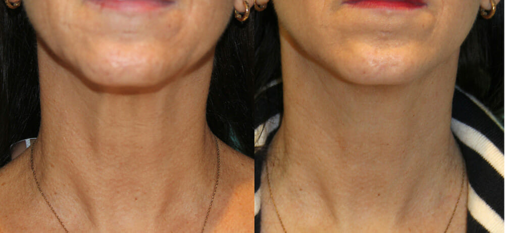 SKIN TIGHTENING + WRINKLE REDUCTION PATIENT 26