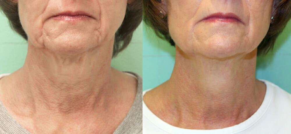 SKIN TIGHTENING + WRINKLE REDUCTION PATIENT 27