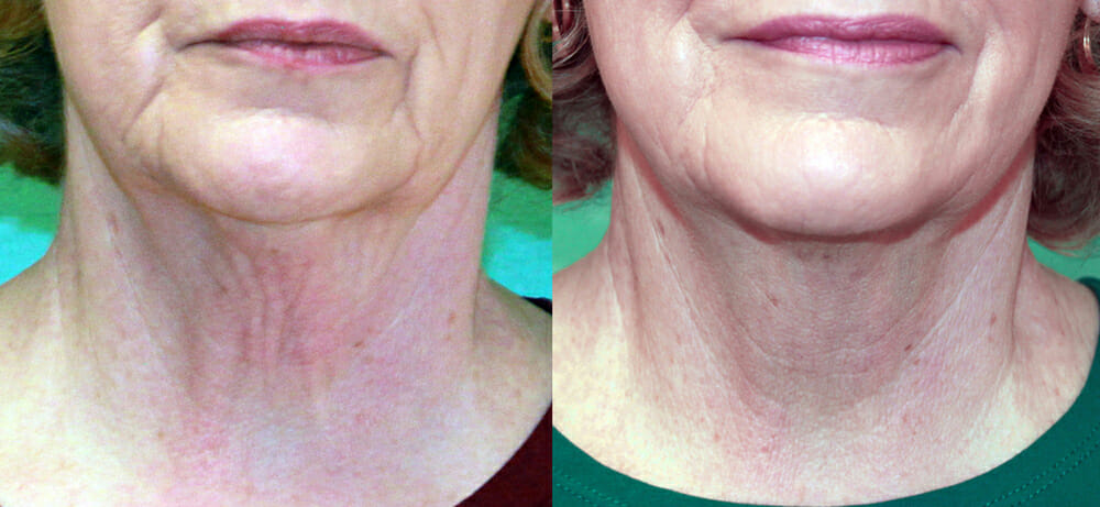 SKIN TIGHTENING + WRINKLE REDUCTION PATIENT 28