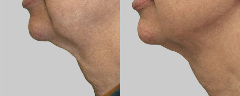 SKIN TIGHTENING + WRINKLE REDUCTION PATIENT 17