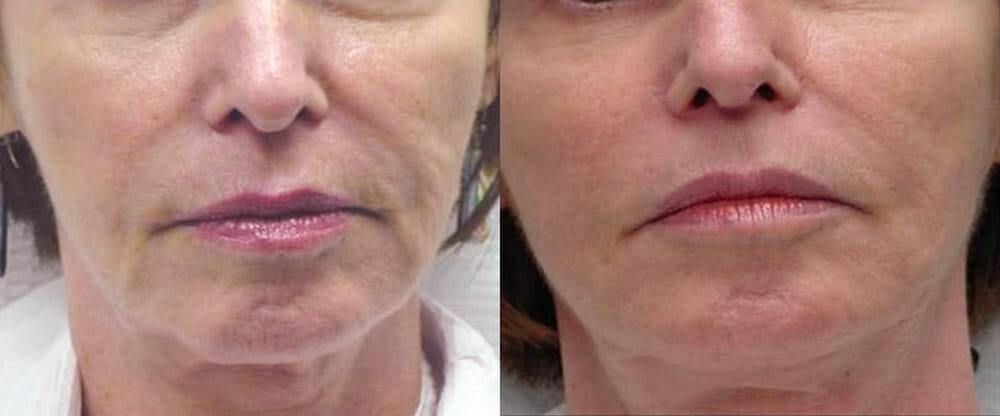 SKIN TIGHTENING + WRINKLE REDUCTION PATIENT 18