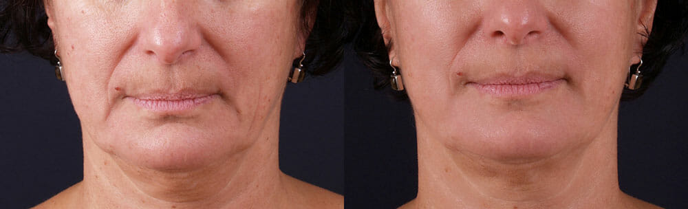 SKIN TIGHTENING + WRINKLE REDUCTION PATIENT 19