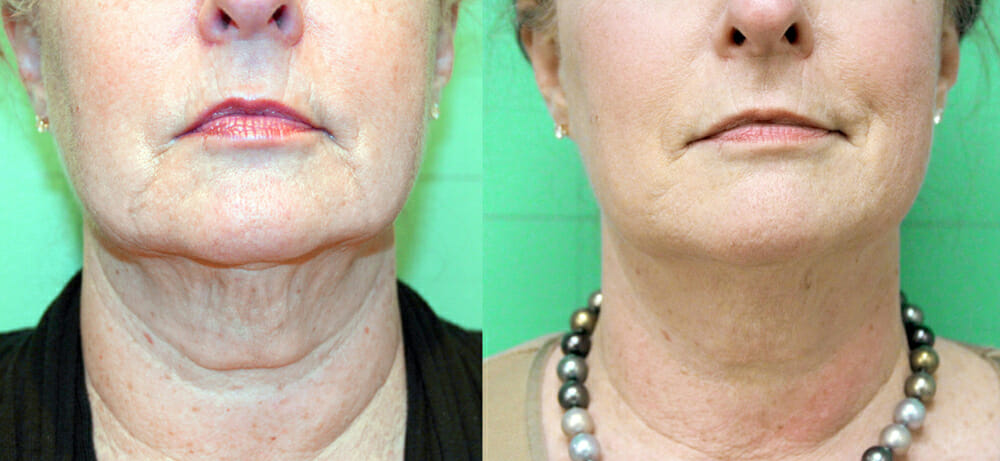 SKIN TIGHTENING + WRINKLE REDUCTION PATIENT 20