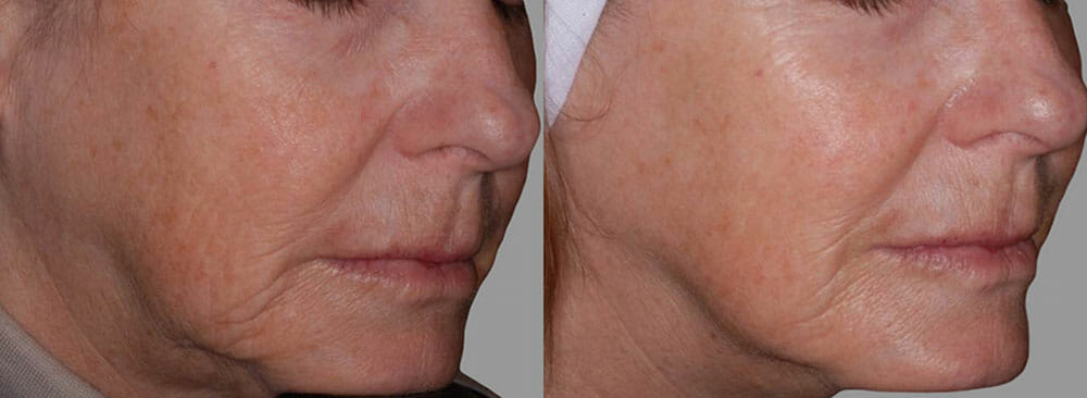 SKIN TIGHTENING + WRINKLE REDUCTION PATIENT 21