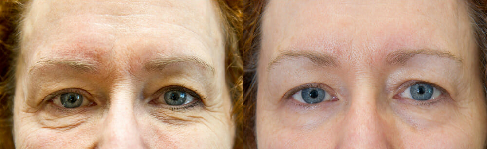 SKIN TIGHTENING + WRINKLE REDUCTION PATIENT 22