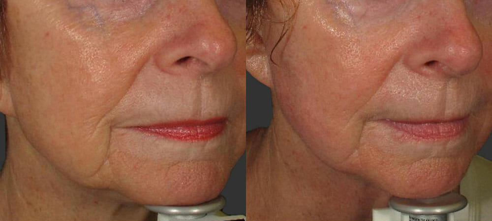 SKIN TIGHTENING + WRINKLE REDUCTION PATIENT 23