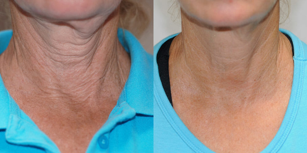 SKIN TIGHTENING + WRINKLE REDUCTION PATIENT 24