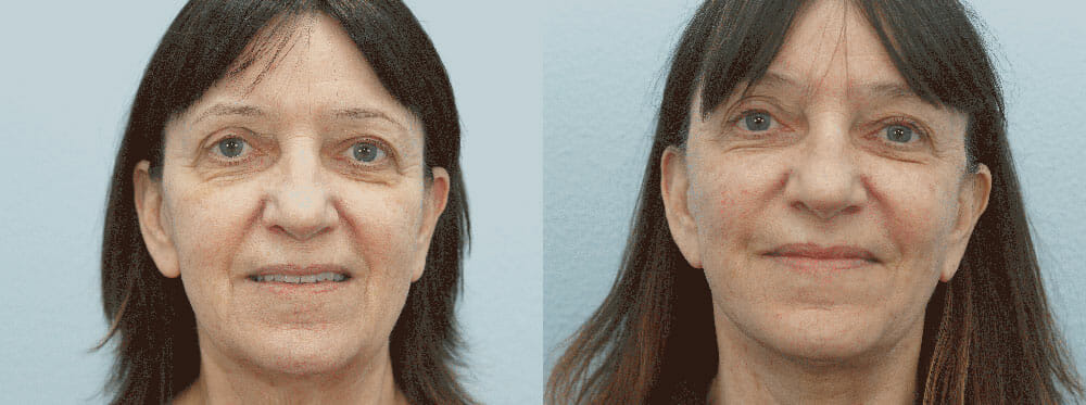 FACELIFT / NECK LIFT PATIENT 8