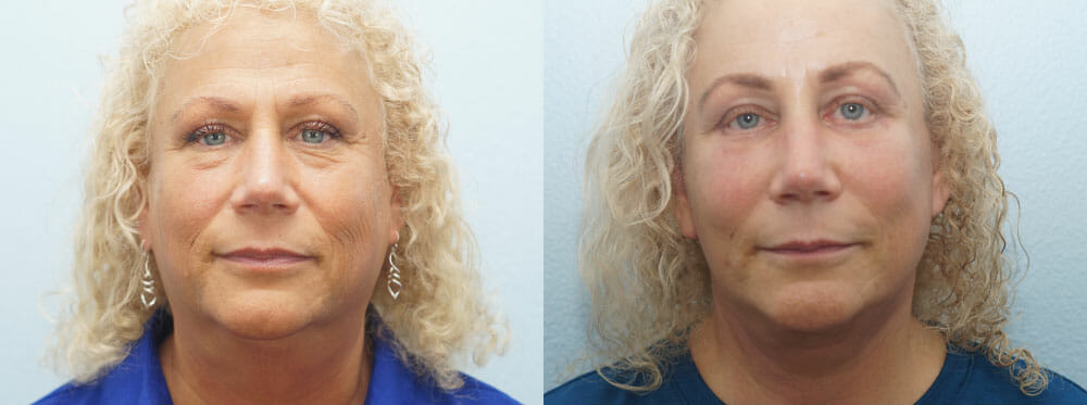 FACELIFT / NECK LIFT PATIENT 6