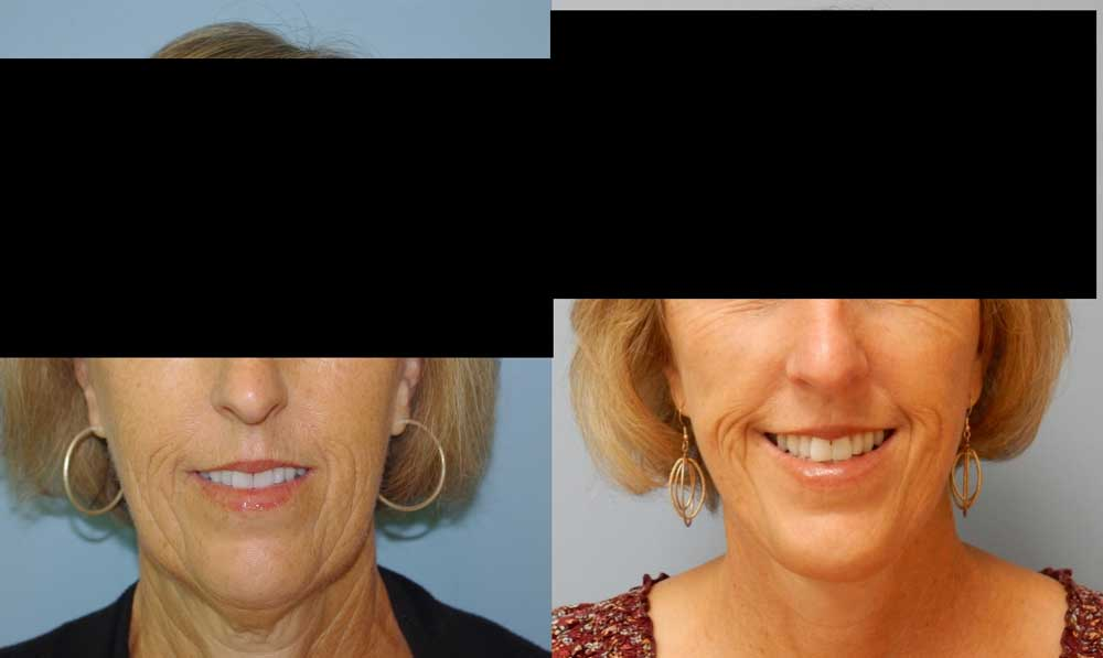 FACELIFT | NECK LIFT PATIENT 1