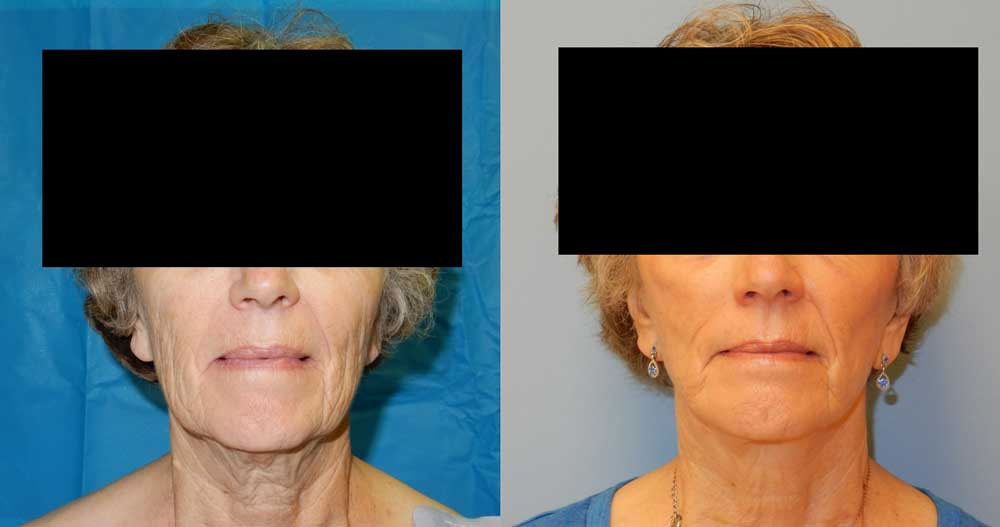 FACELIFT | NECK LIFT PATIENT 2