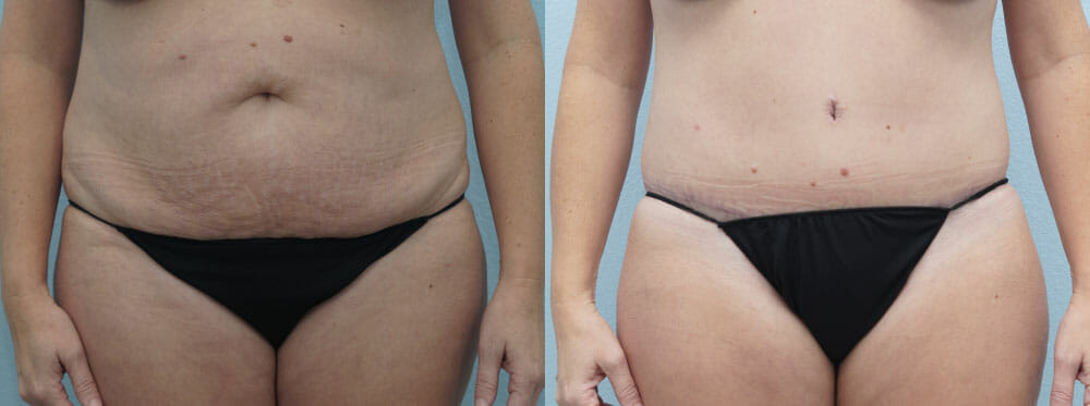 TUMMY TUCK (ABDOMINOPLASTY) PATIENT 28