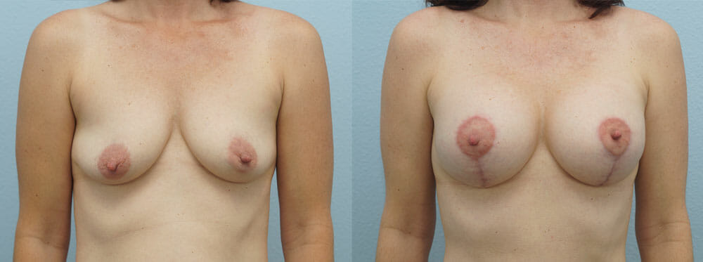 BREAST LIFT WITH IMPLANTS PATIENT 12