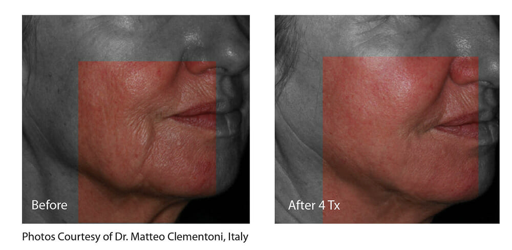 SKIN TIGHTENING + WRINKLE REDUCTION PATIENT 1