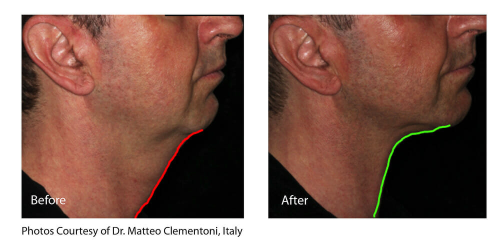 SKIN TIGHTENING + WRINKLE REDUCTION PATIENT 2