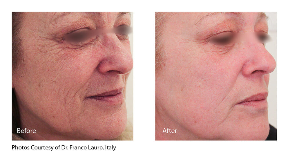 SKIN TIGHTENING + WRINKLE REDUCTION PATIENT 3