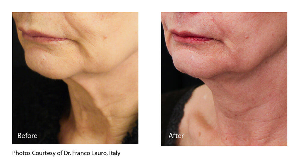 SKIN TIGHTENING + WRINKLE REDUCTION PATIENT 4