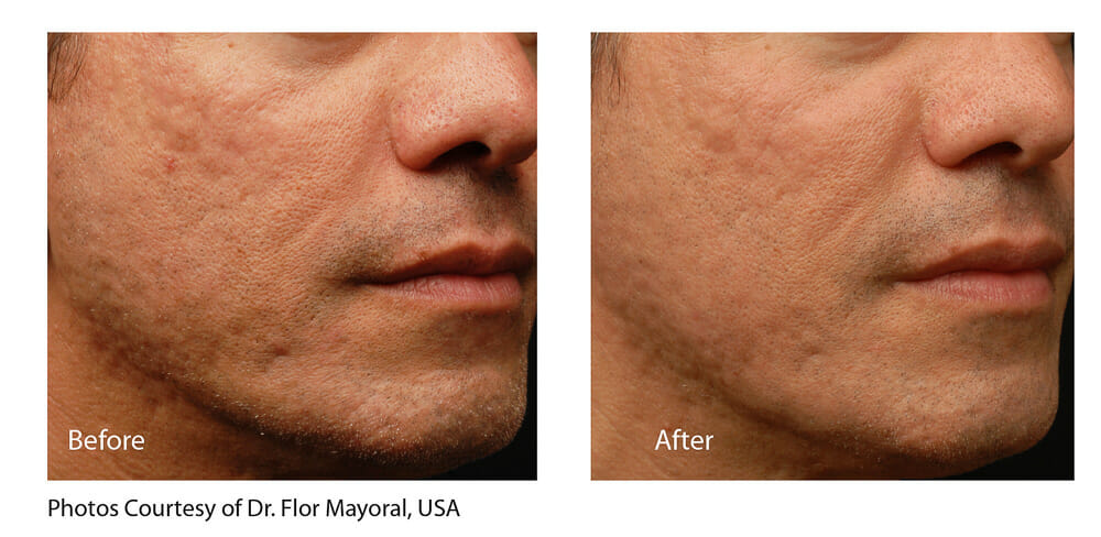 ACNE AND SCAR REDUCTION PATIENT 1