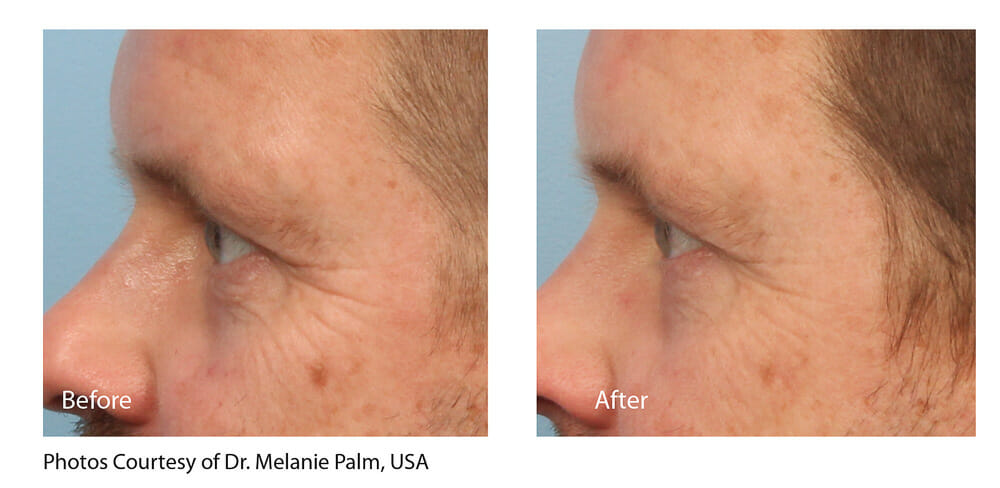 SKIN TIGHTENING + WRINKLE REDUCTION PATIENT 5