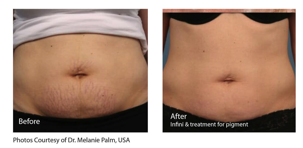 STRETCH MARK REDUCTION PATIENT 1