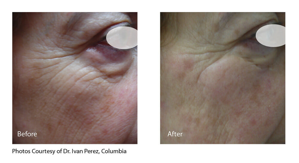 SKIN TIGHTENING + WRINKLE REDUCTION PATIENT 6