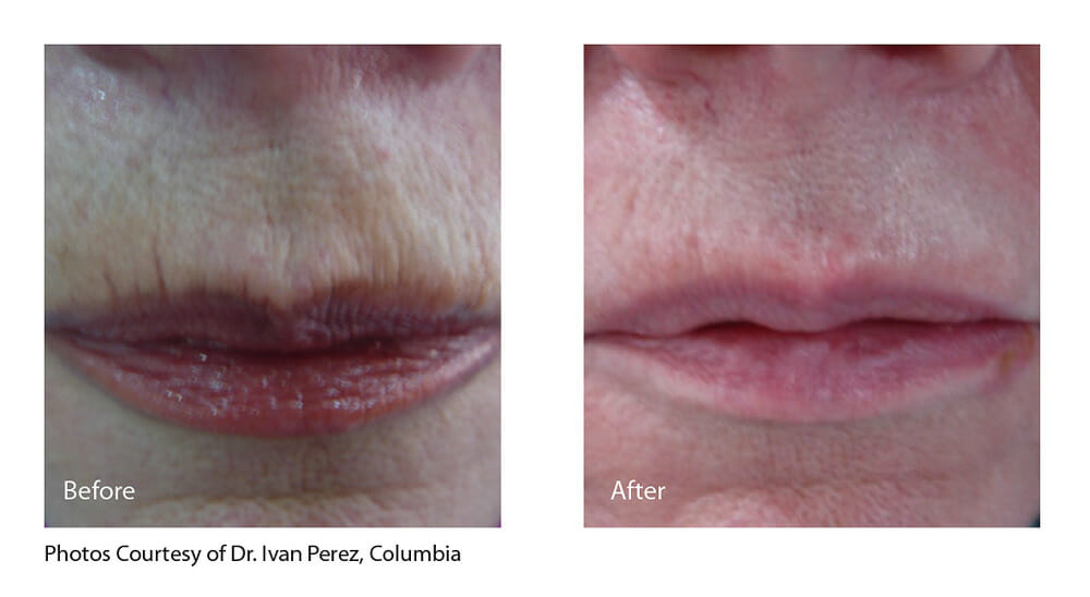 SKIN TIGHTENING + WRINKLE REDUCTION PATIENT 7
