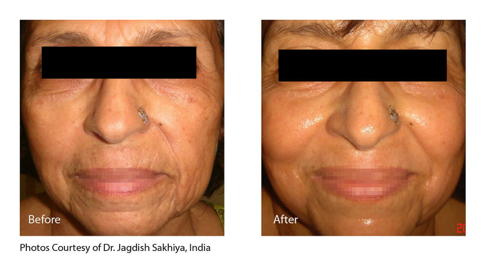 SKIN TIGHTENING + WRINKLE REDUCTION PATIENT 8