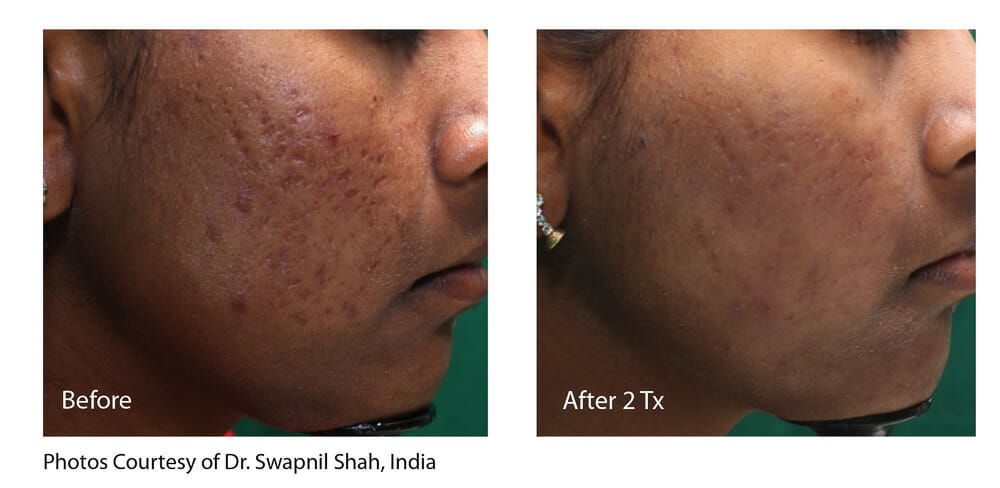ACNE AND SCAR REDUCTION PATIENT 2