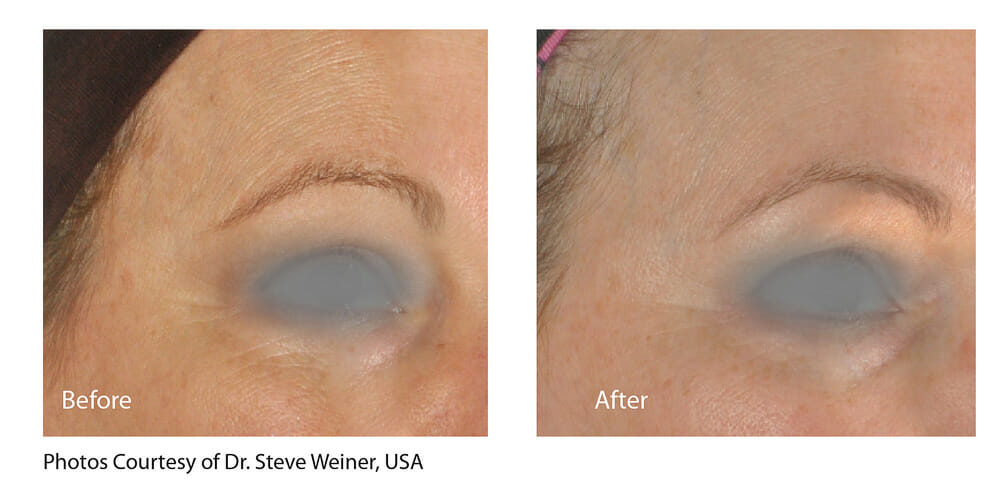 SKIN TIGHTENING + WRINKLE REDUCTION PATIENT 9