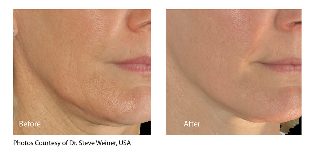 SKIN TIGHTENING + WRINKLE REDUCTION PATIENT 11