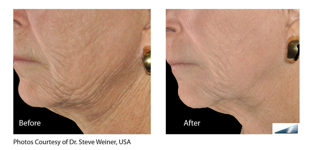 SKIN TIGHTENING + WRINKLE REDUCTION PATIENT 12