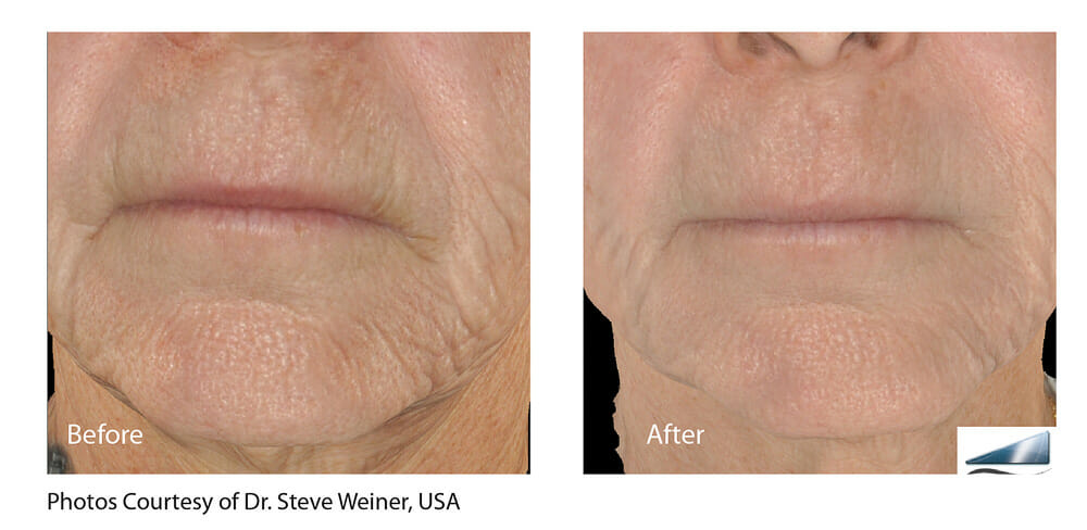 SKIN TIGHTENING + WRINKLE REDUCTION PATIENT 13