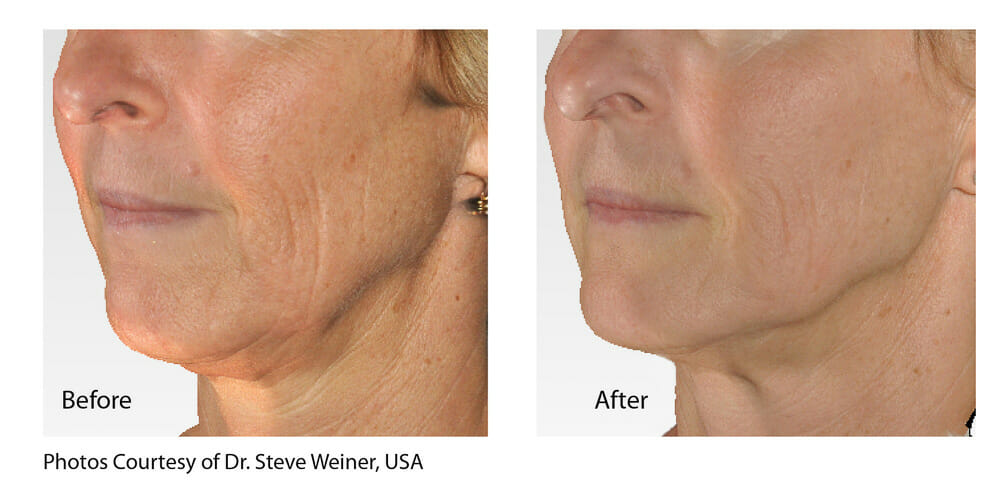 SKIN TIGHTENING + WRINKLE REDUCTION PATIENT 10