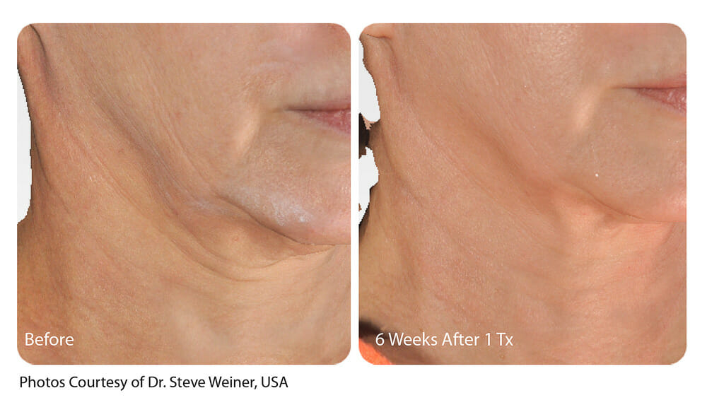 SKIN TIGHTENING + WRINKLE REDUCTION PATIENT 14
