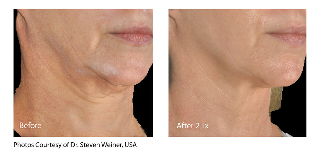 SKIN TIGHTENING + WRINKLE REDUCTION PATIENT 15
