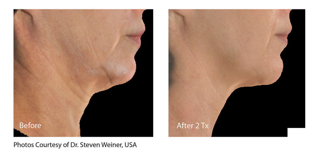 SKIN TIGHTENING + WRINKLE REDUCTION PATIENT 16