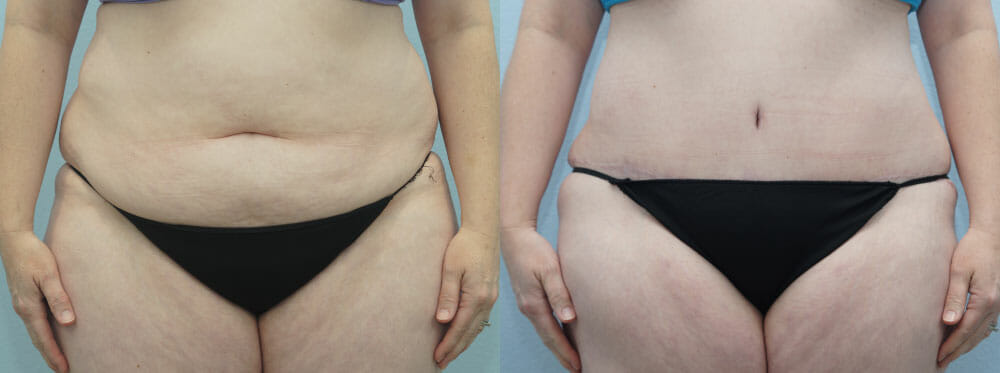 TUMMY TUCK (ABDOMINOPLASTY) PATIENT 26