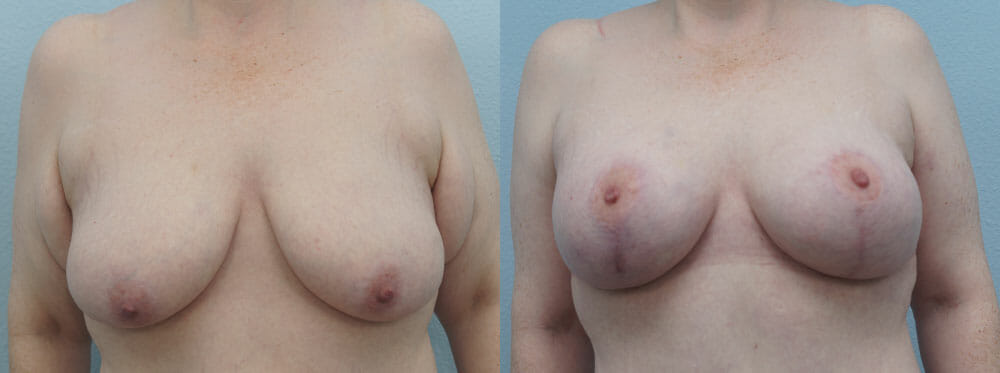 BREAST LIFT WITH IMPLANTS PATIENT 28