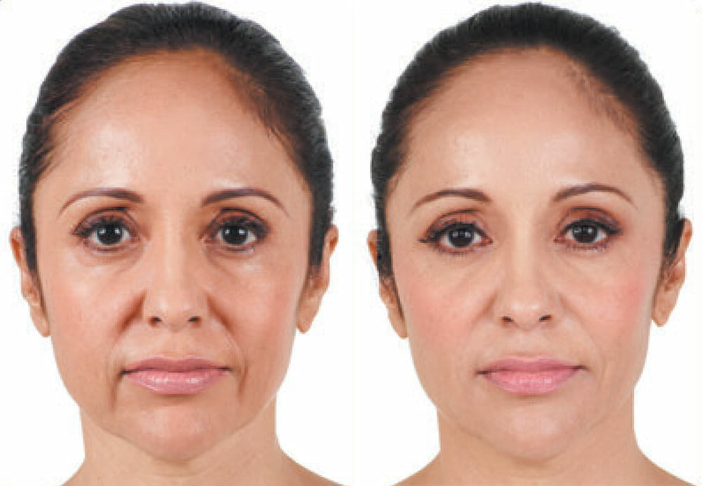 Dermal Fillers (Injectable Fillers)   Neaman Plastic Surgery