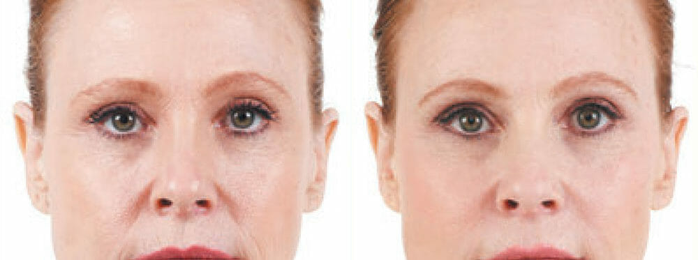 Dermal Fillers (Injectable Fillers) | Neaman Plastic Surgery