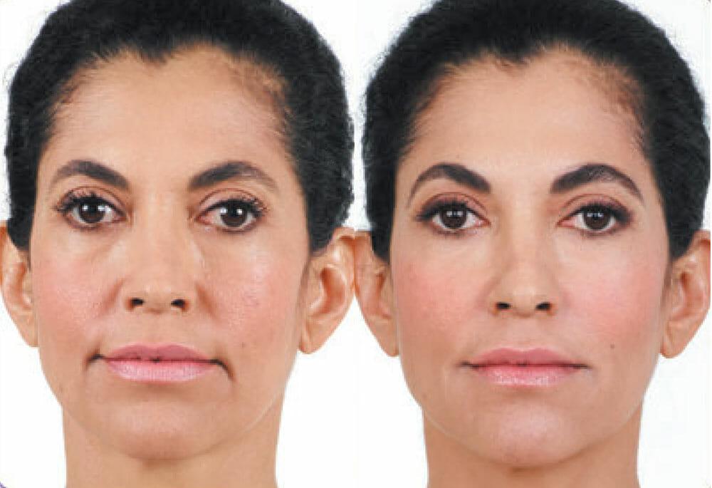 BOTOX AND DERMAL FILLERS | Neaman Plastic Surgery