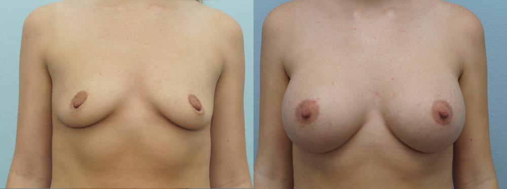 BREAST AUGMENTATION PATIENT 56