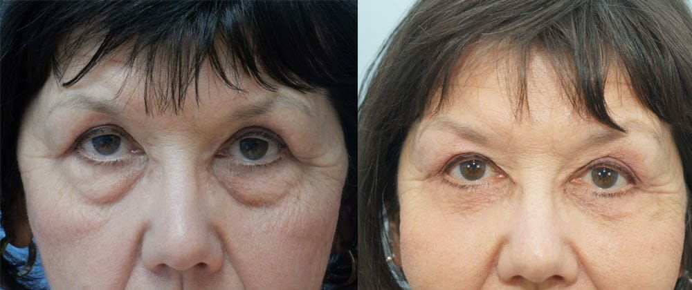 EYELID SURGERY (BLEPHAROPLASTY) PATIENT 9
