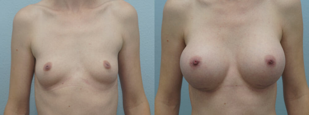 BREAST AUGMENTATION PATIENT 46